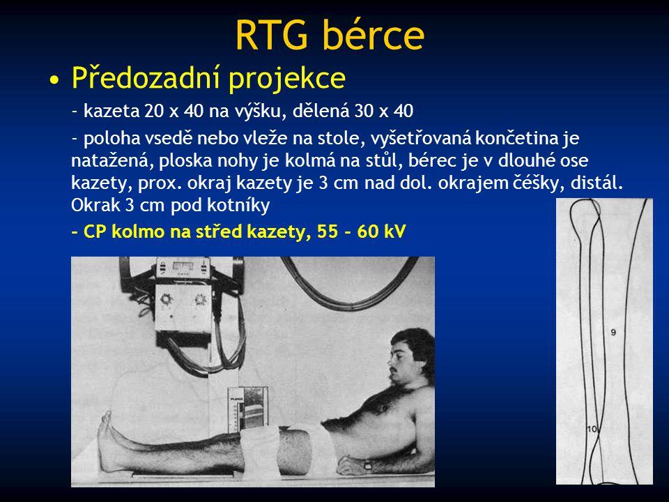 RTG bérce Předozadní projekce