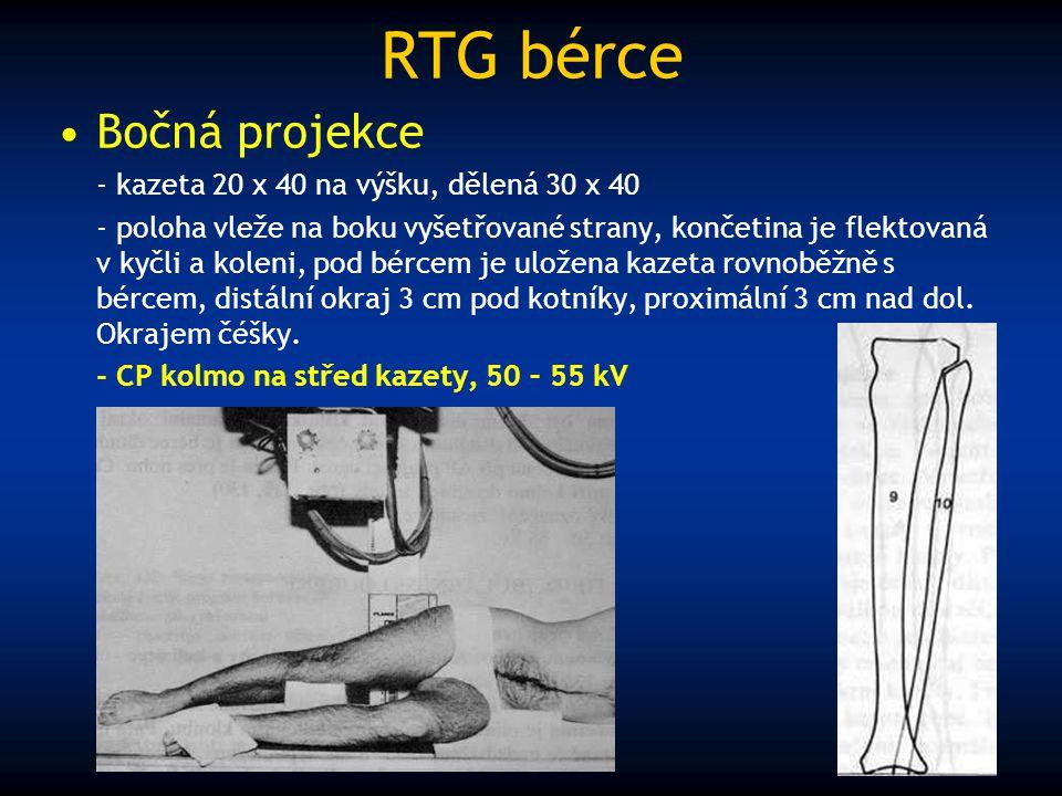 RTG bérce Bočná projekce - kazeta 20 x 40 na výšku, dělená 30 x 40