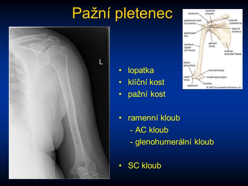 Pažní pletenec lopatka klíční kost pažní kost ramenní kloub - AC kloub