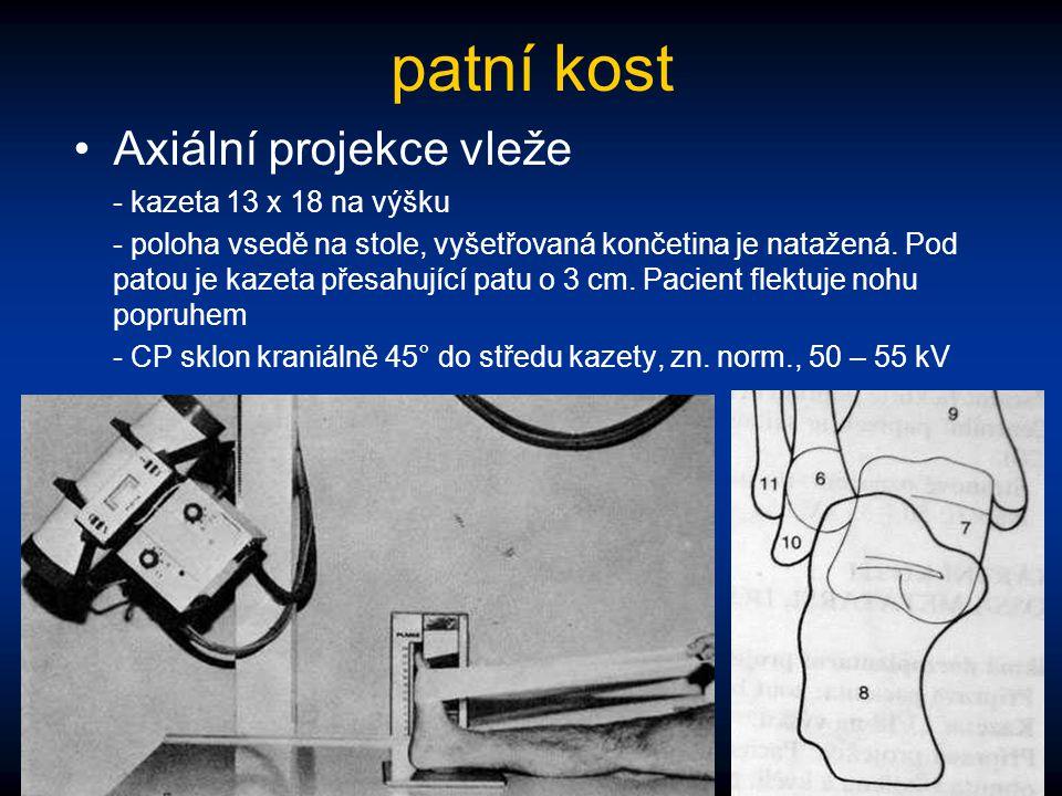 patní kost Axiální projekce vleže - kazeta 13 x 18 na výšku