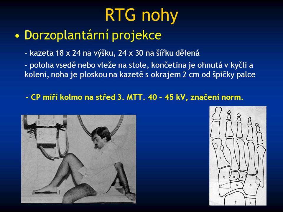 RTG nohy Dorzoplantární projekce