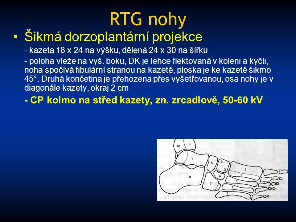 RTG nohy Šikmá dorzoplantární projekce