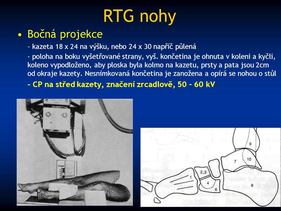 RTG nohy Bočná projekce