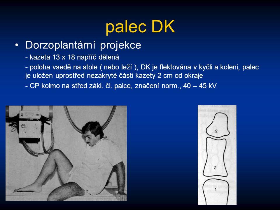 palec DK Dorzoplantární projekce - kazeta 13 x 18 napříč dělená