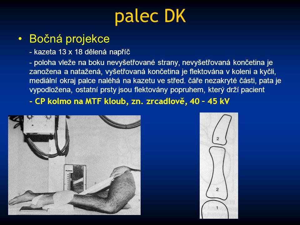 palec DK Bočná projekce - kazeta 13 x 18 dělená napříč