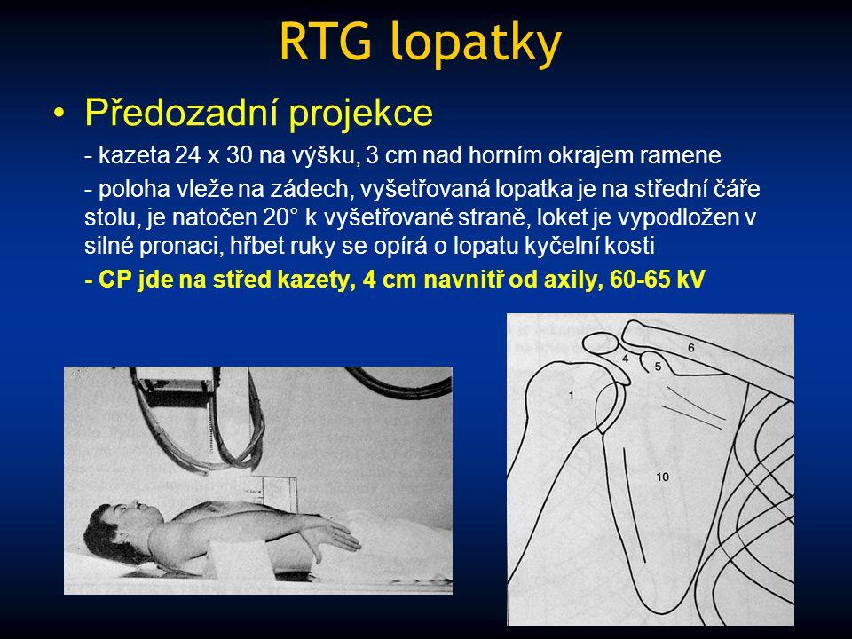 RTG lopatky Předozadní projekce