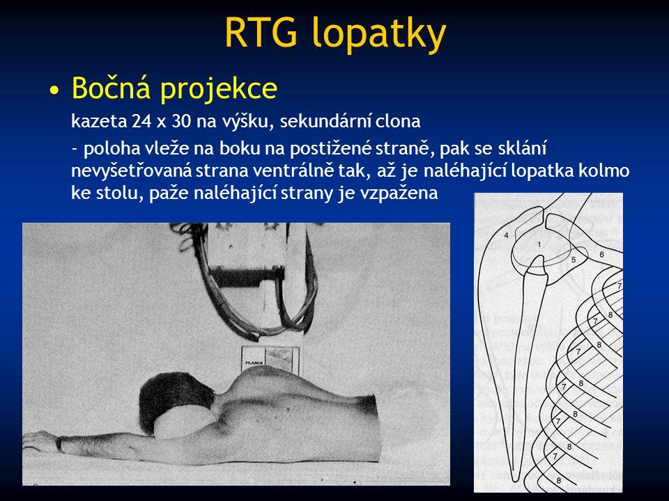 RTG lopatky Bočná projekce kazeta 24 x 30 na výšku, sekundární clona