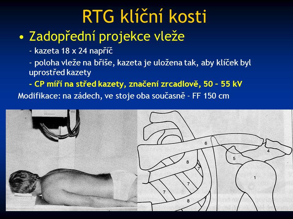 RTG klíční kosti Zadopřední projekce vleže - kazeta 18 x 24 napříč