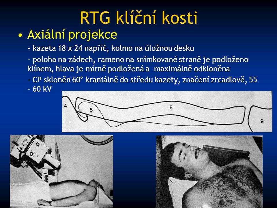 RTG klíční kosti Axiální projekce