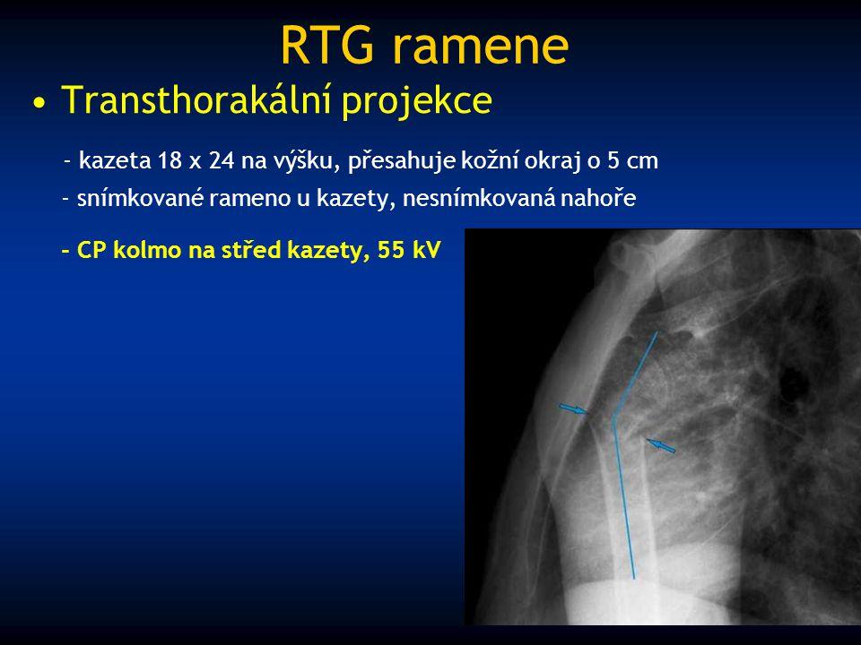 RTG ramene Transthorakální projekce