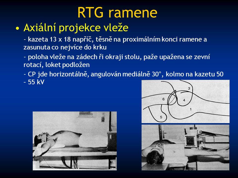 RTG ramene Axiální projekce vleže