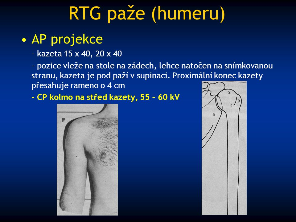 RTG paže (humeru) AP projekce - kazeta 15 x 40, 20 x 40