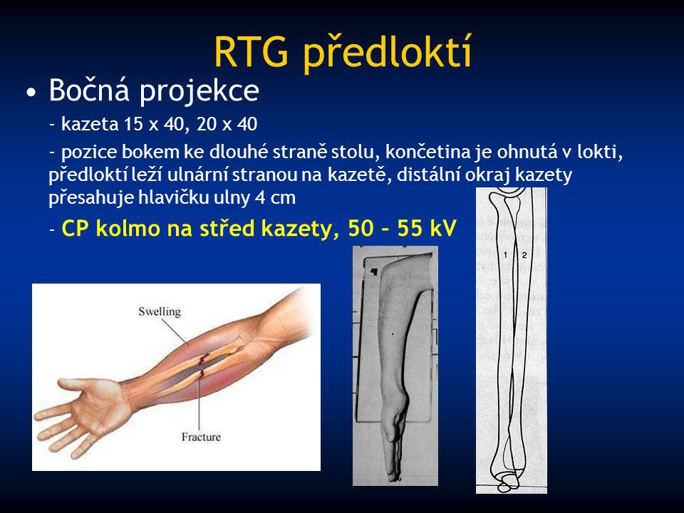 RTG předloktí Bočná projekce - kazeta 15 x 40, 20 x 40