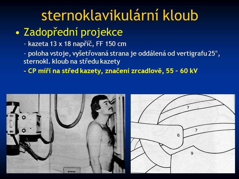 sternoklavikulární kloub