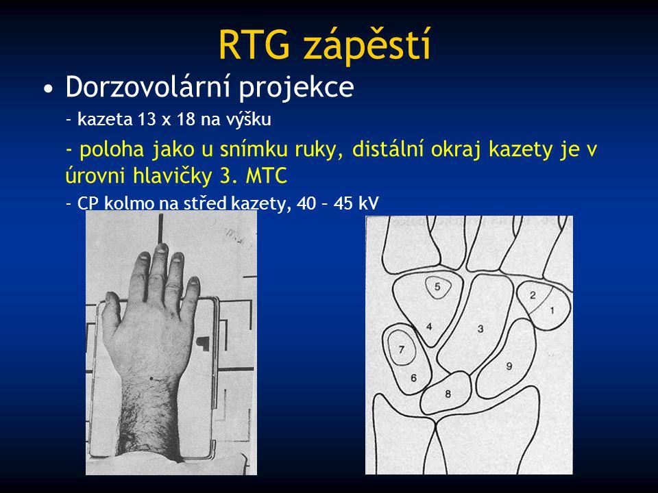 RTG zápěstí Dorzovolární projekce - kazeta 13 x 18 na výšku