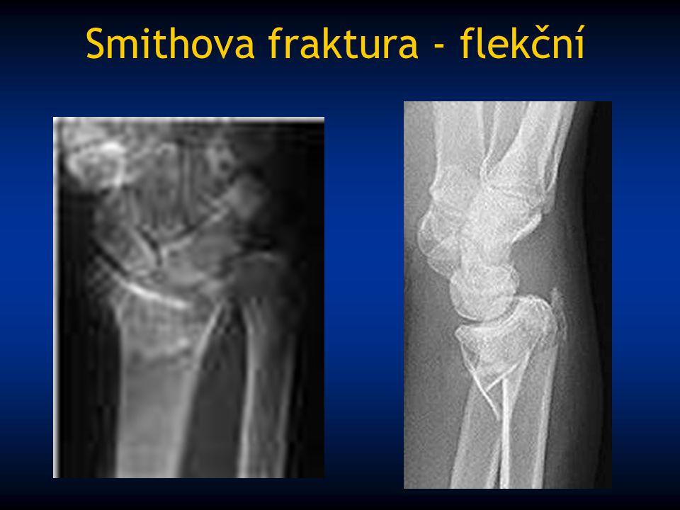 Smithova fraktura - flekční