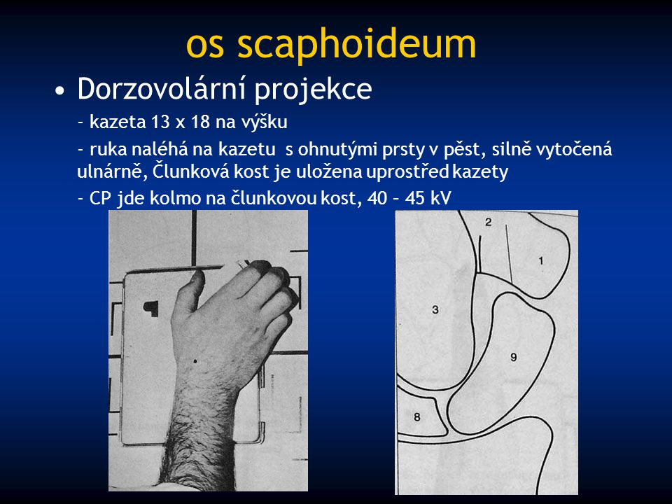 os scaphoideum Dorzovolární projekce - kazeta 13 x 18 na výšku