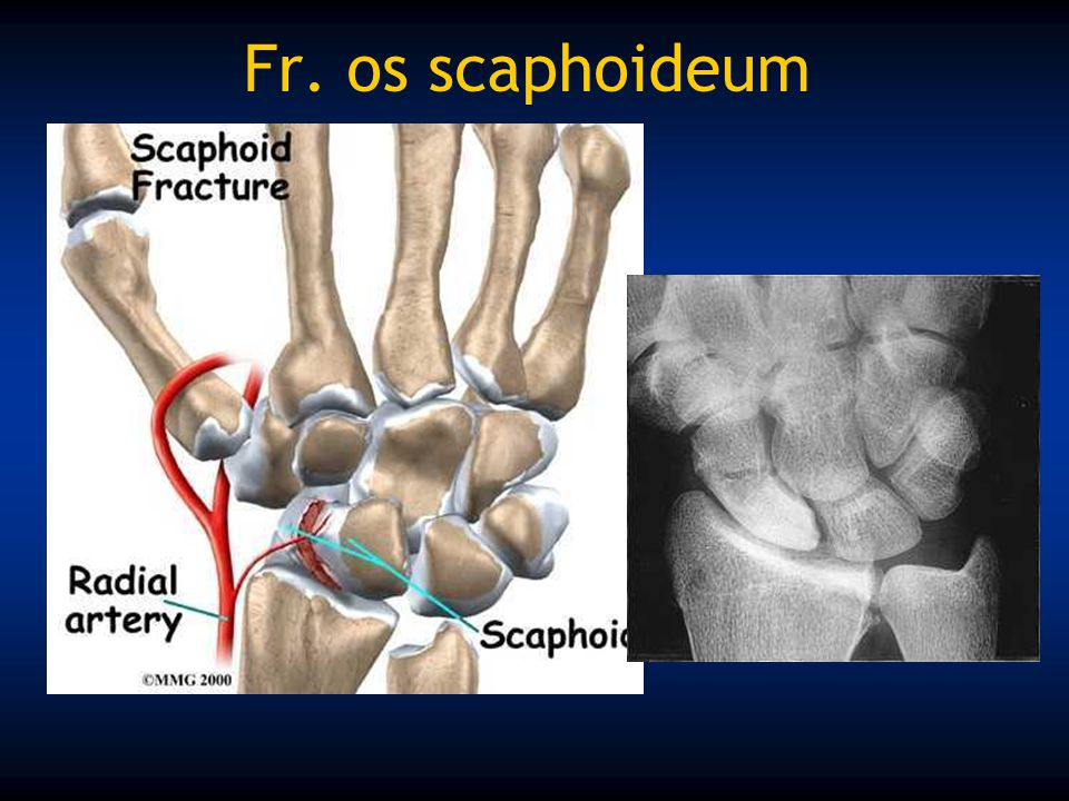 Fr. os scaphoideum