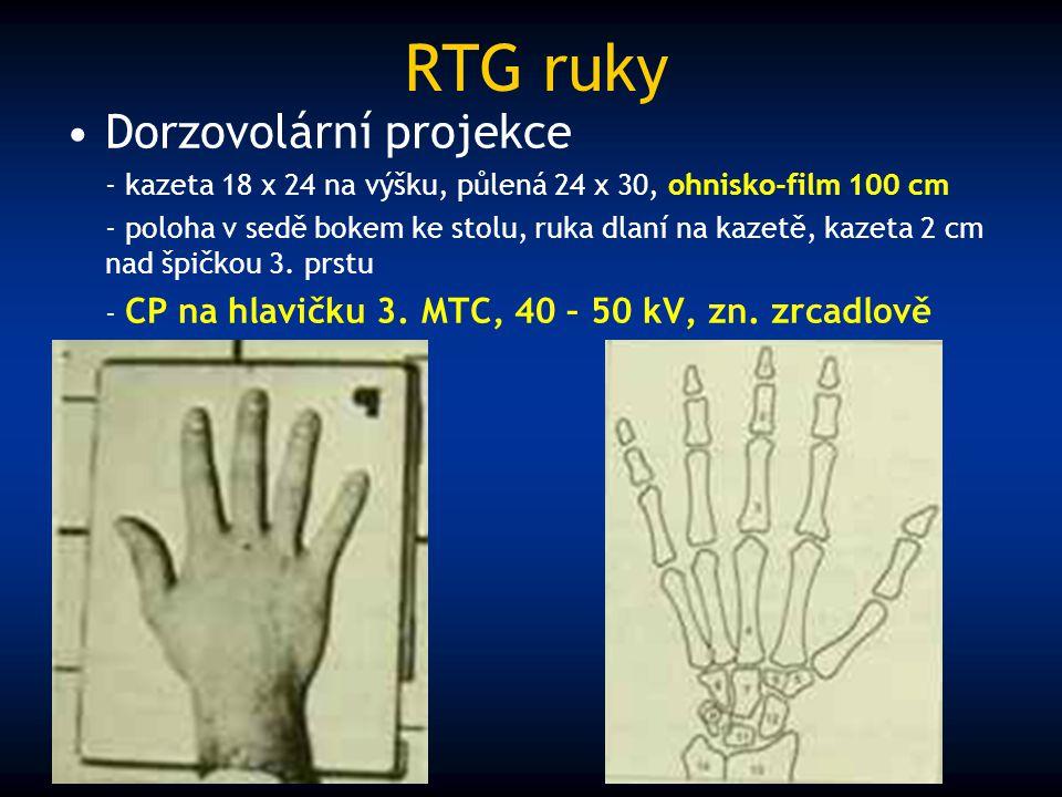 RTG ruky Dorzovolární projekce