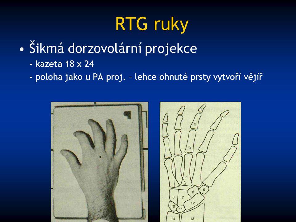 RTG ruky Šikmá dorzovolární projekce