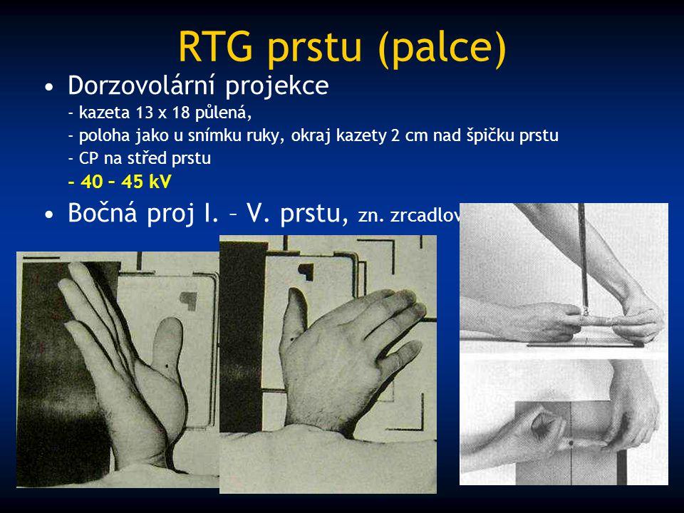 RTG prstu (palce) Dorzovolární projekce