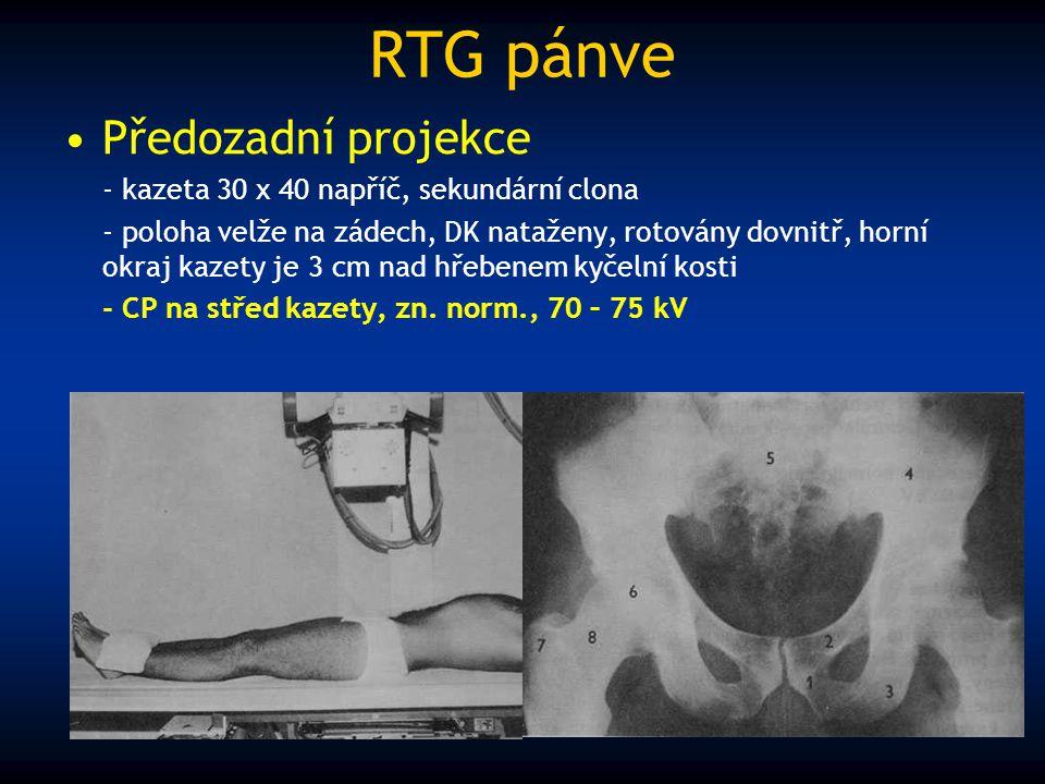 RTG pánve Předozadní projekce