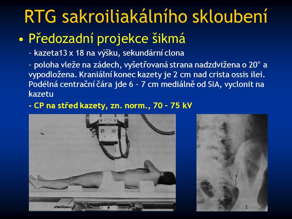 RTG sakroiliakálního skloubení