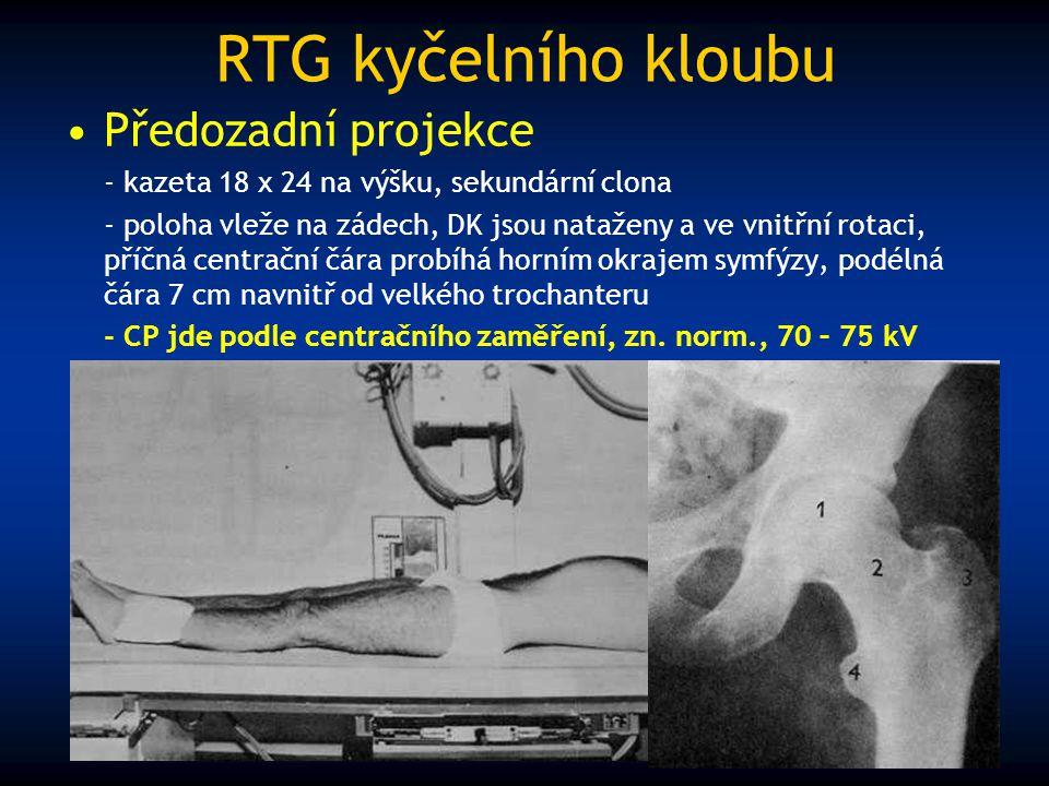 RTG kyčelního kloubu Předozadní projekce