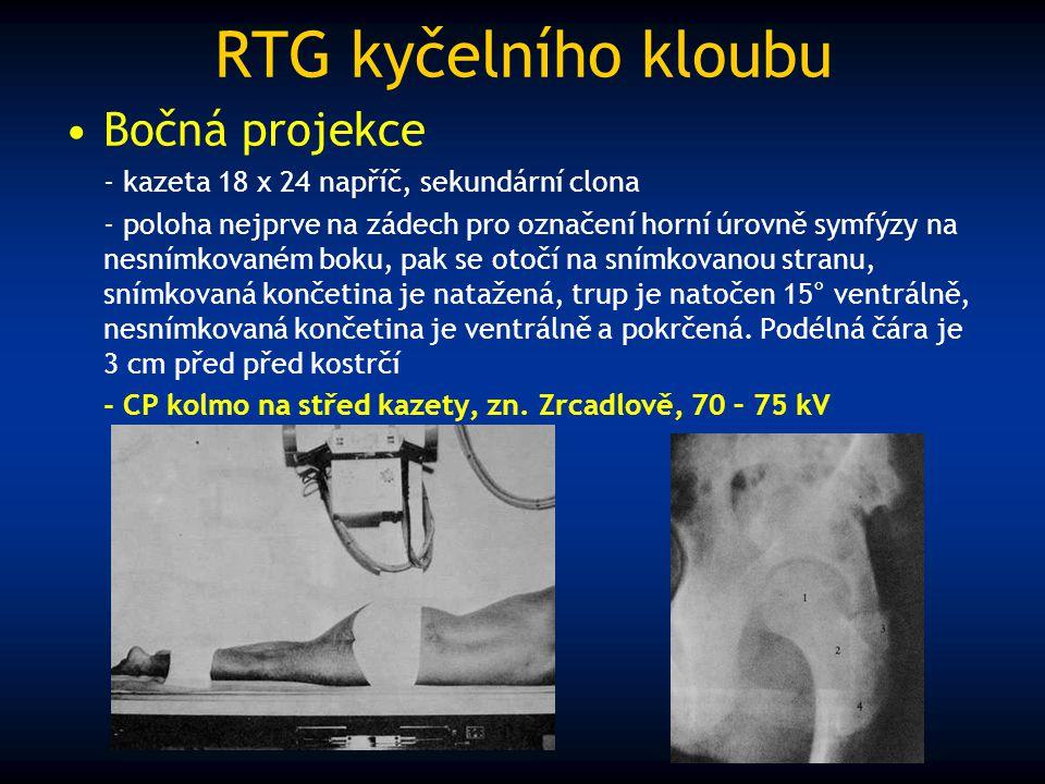 RTG kyčelního kloubu Bočná projekce