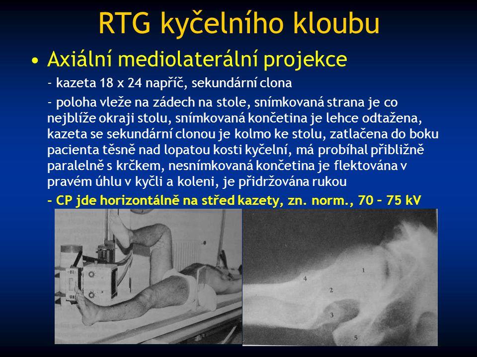 RTG kyčelního kloubu Axiální mediolaterální projekce
