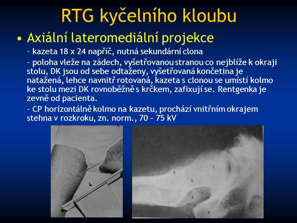 RTG kyčelního kloubu Axiální lateromediální projekce