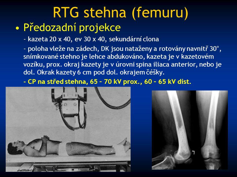 RTG stehna (femuru) Předozadní projekce