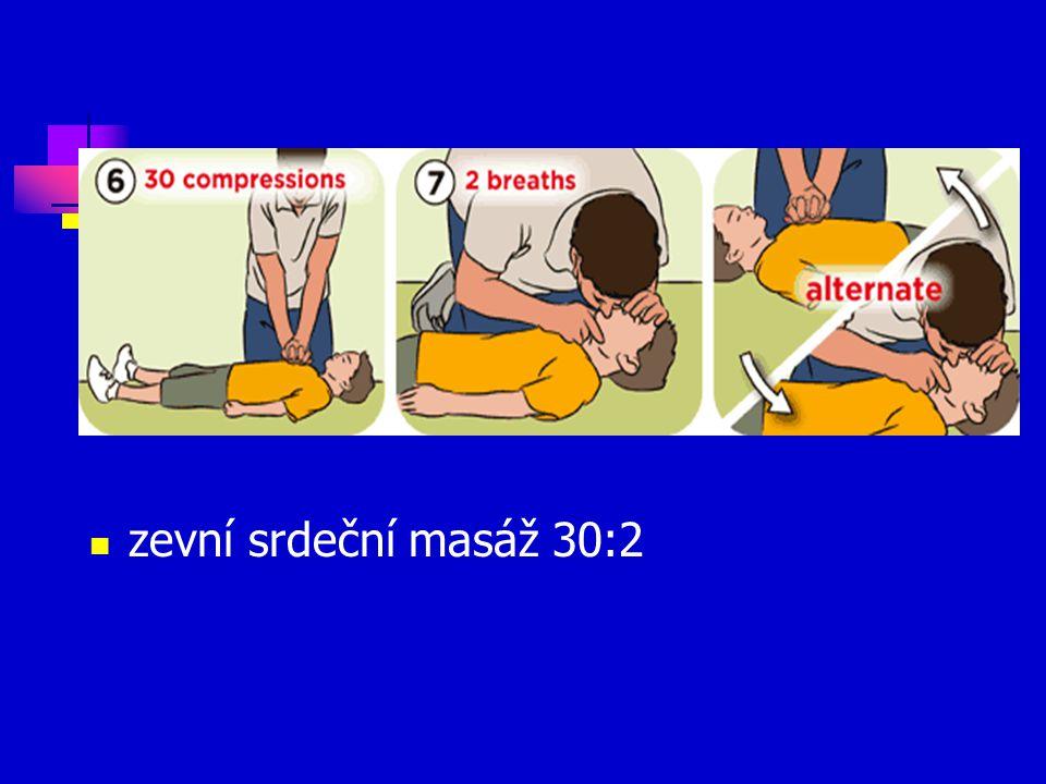 zevní srdeční masáž 30:2
