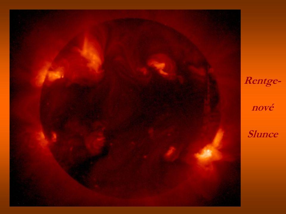 Rentge- nové Slunce