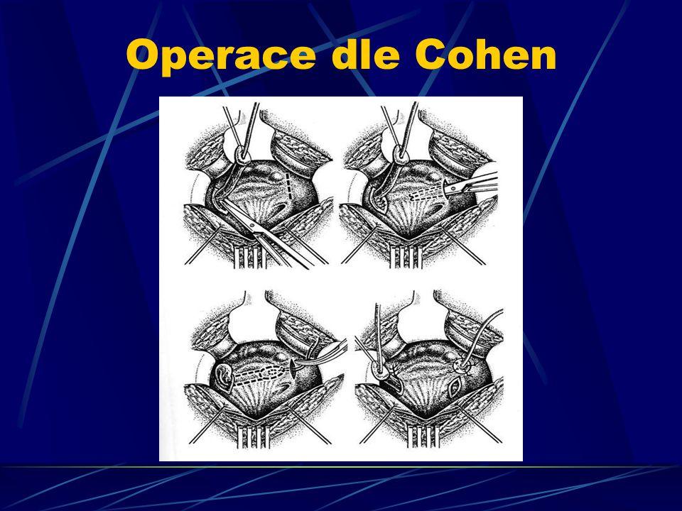 Operace dle Cohen
