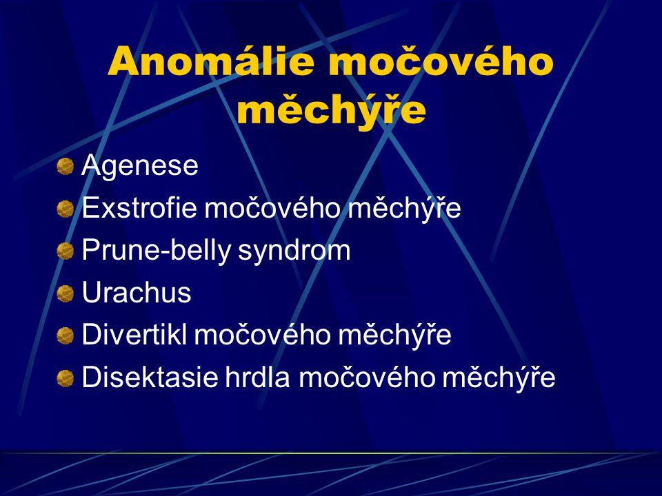 Anomálie močového měchýře