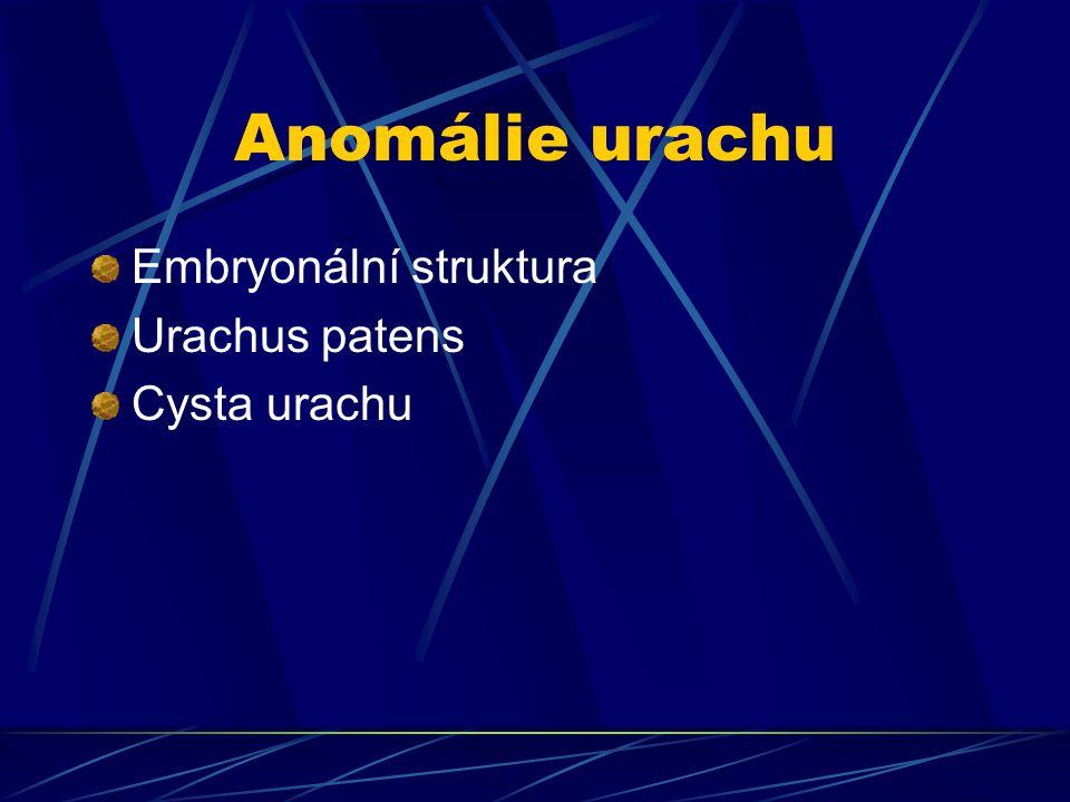 Anomálie urachu Embryonální struktura Urachus patens Cysta urachu
