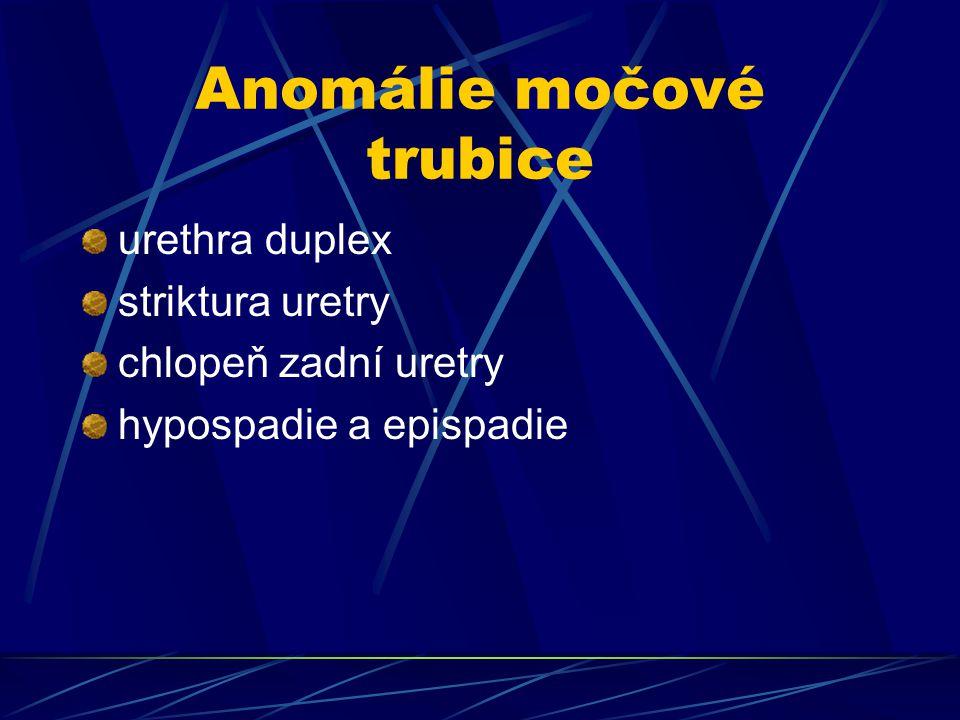 Anomálie močové trubice
