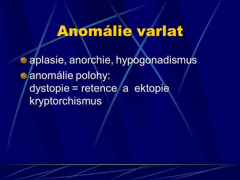 Anomálie varlat aplasie, anorchie, hypogonadismus