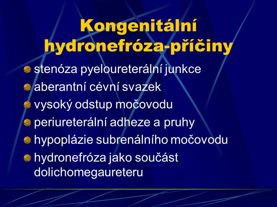 Kongenitální hydronefróza-příčiny