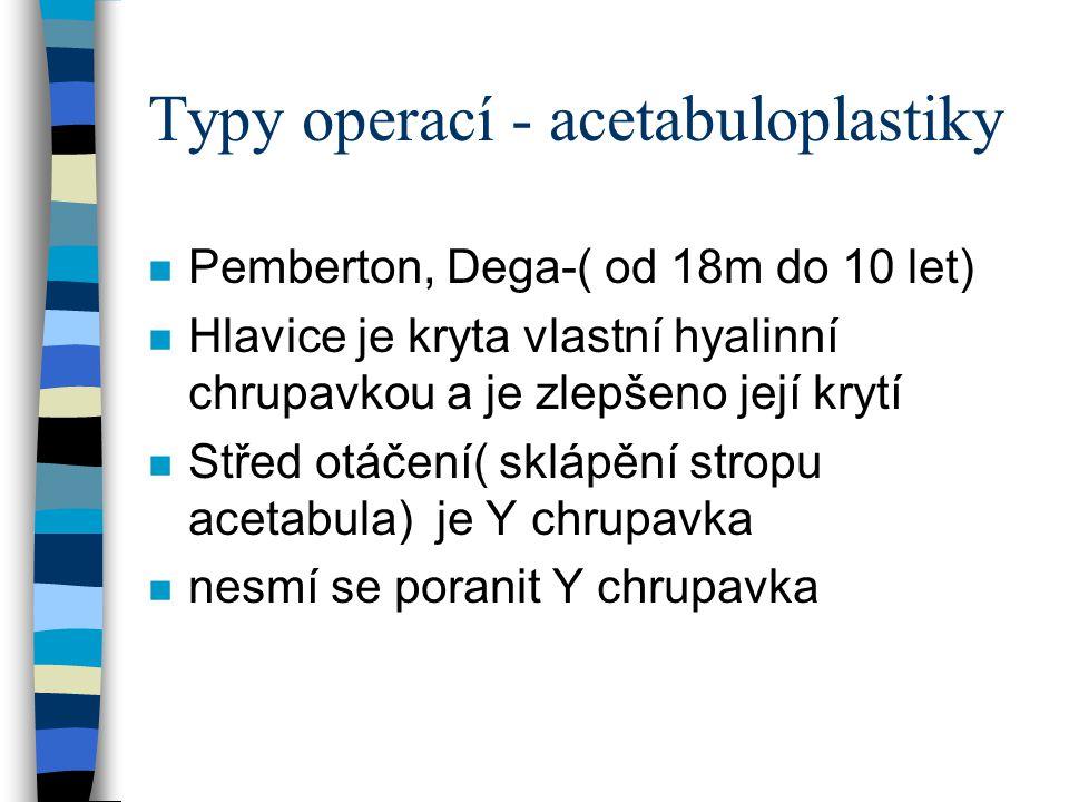 Typy operací - acetabuloplastiky