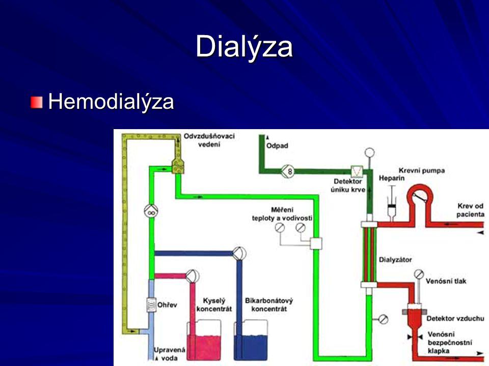 Dialýza Hemodialýza