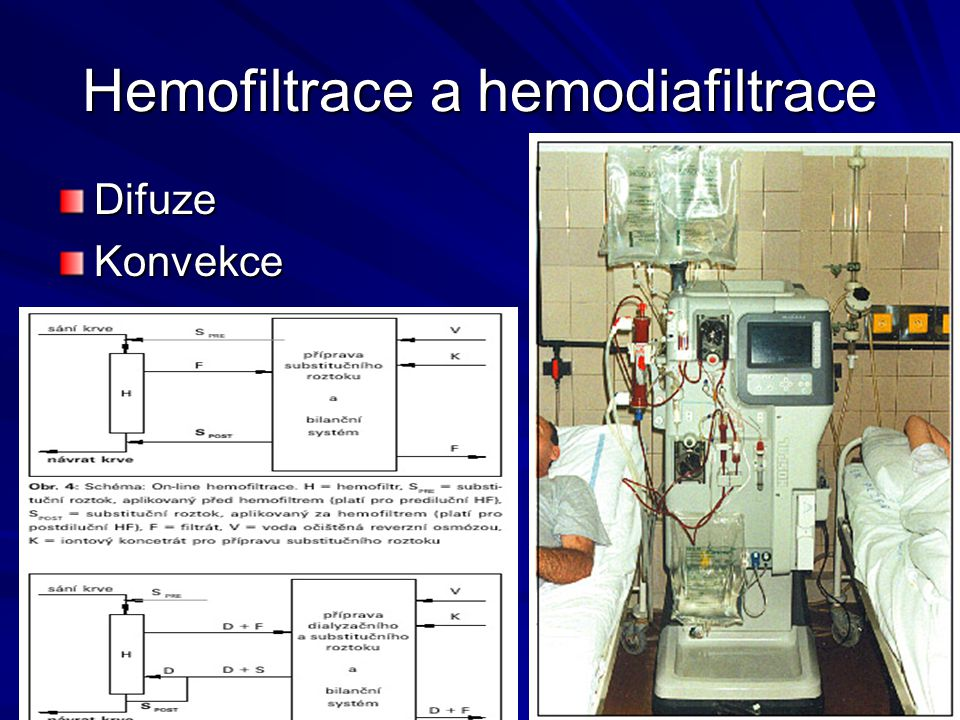 Hemofiltrace a hemodiafiltrace