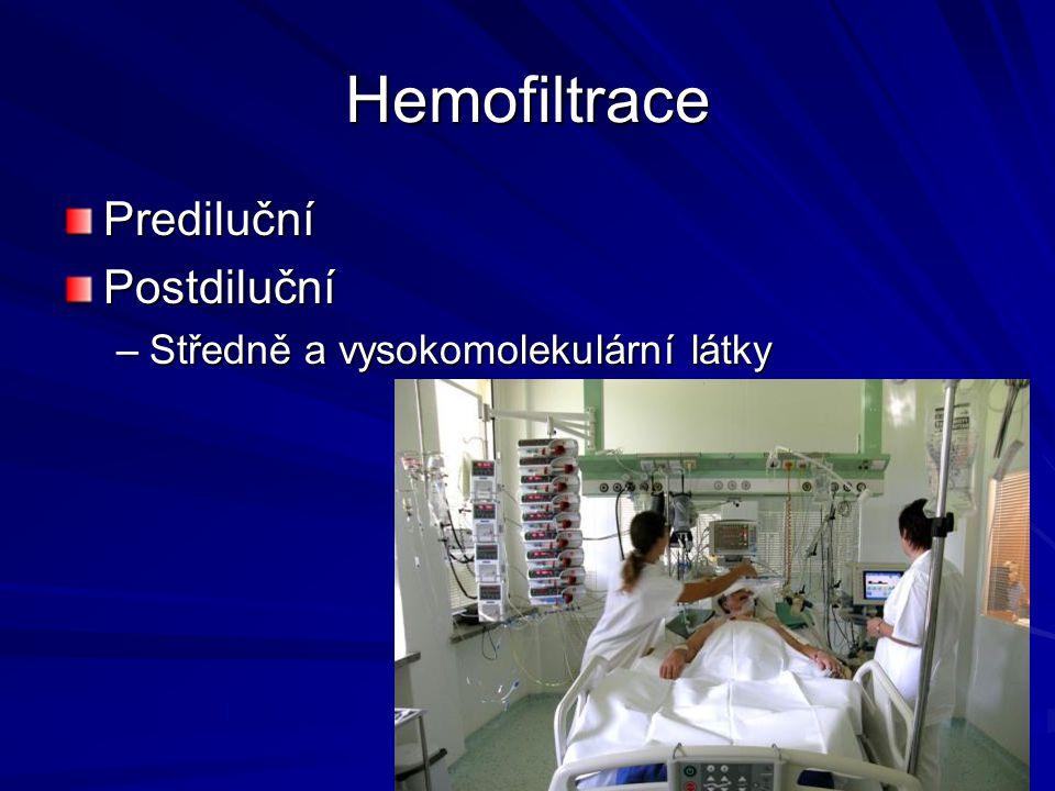 Hemofiltrace Prediluční Postdiluční Středně a vysokomolekulární látky