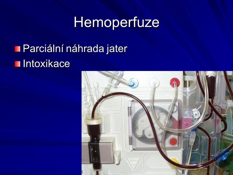 Hemoperfuze Parciální náhrada jater Intoxikace