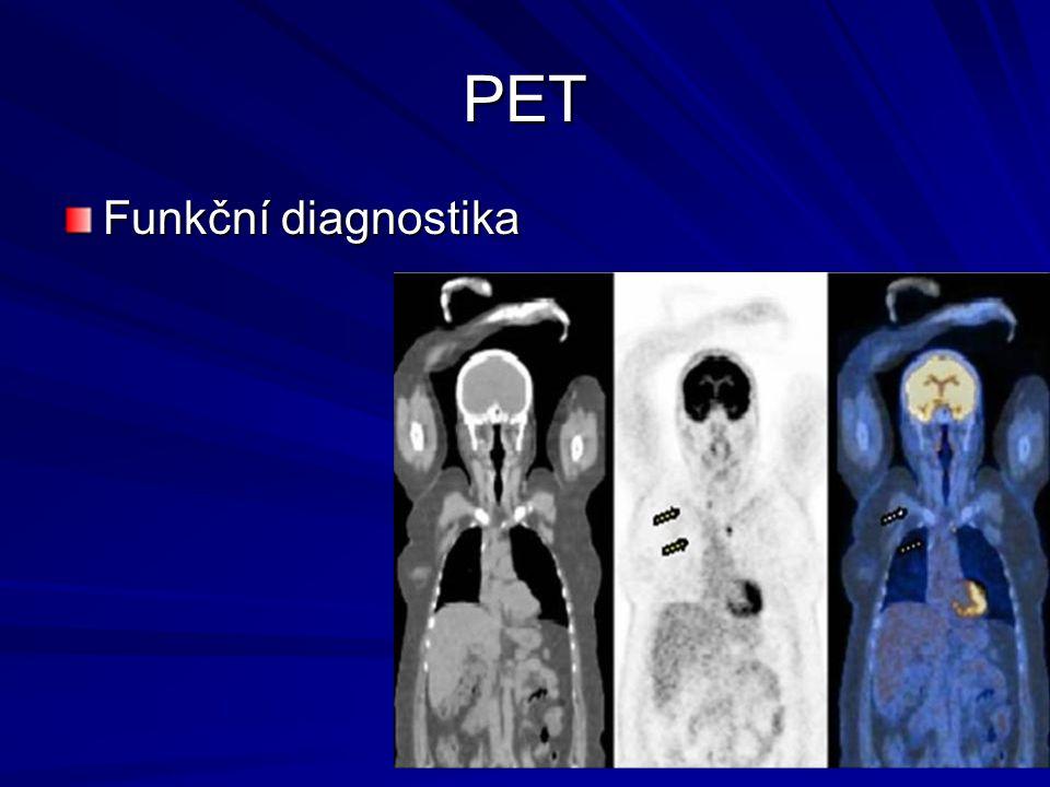 PET Funkční diagnostika