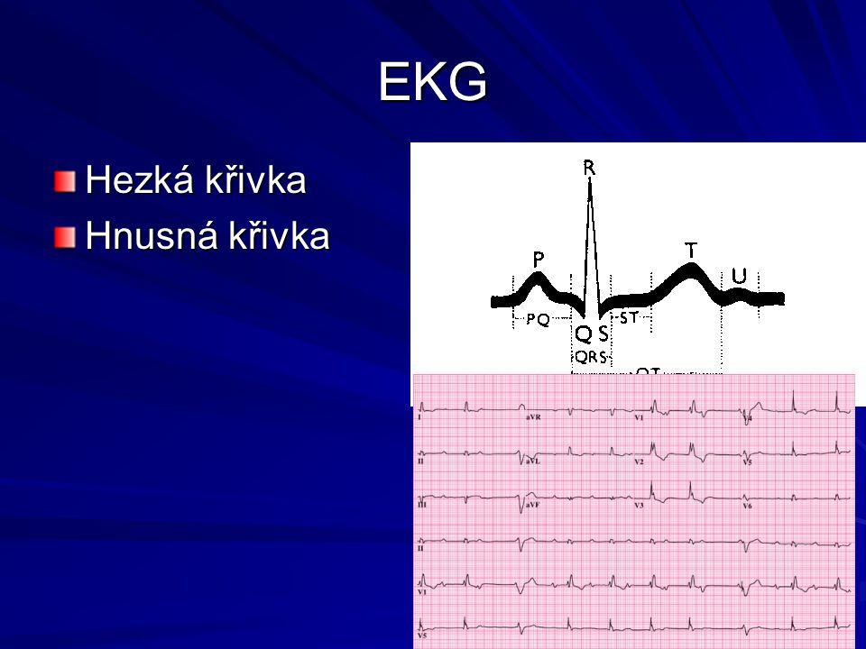 EKG Hezká křivka Hnusná křivka