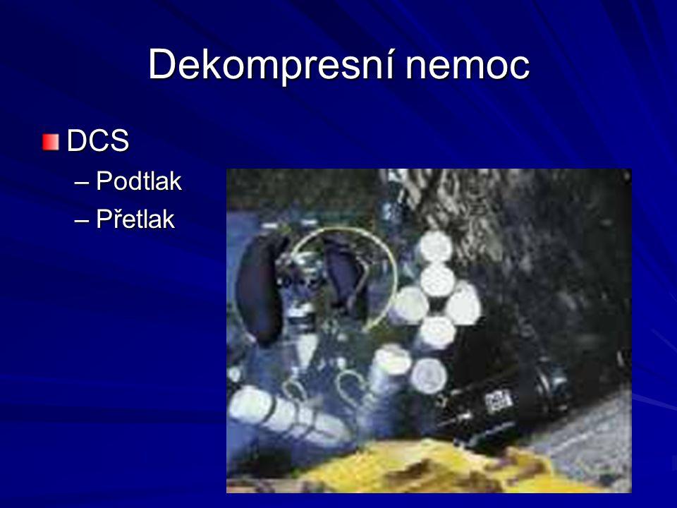 Dekompresní nemoc DCS Podtlak Přetlak