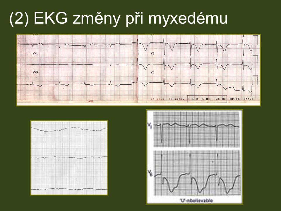 (2) EKG změny při myxedému