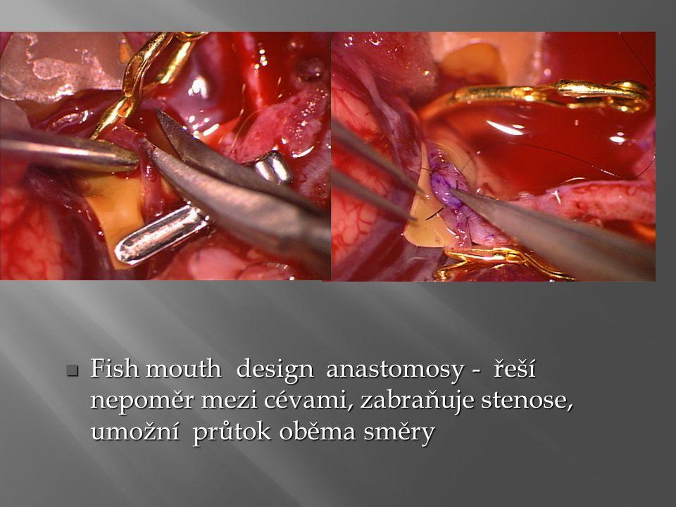 Fish mouth design anastomosy - řeší nepoměr mezi cévami, zabraňuje stenose, umožní průtok oběma směry
